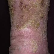 Застойный дерматит