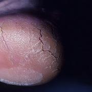 Кератодермия