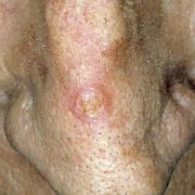 Рак кожи на носу