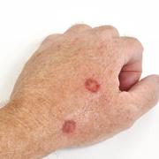 Рак кожи на руках