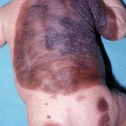 Рак кожи у детей