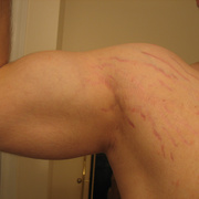 Растяжки на грудных мышцах