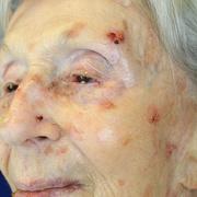 Рак кожи на лице