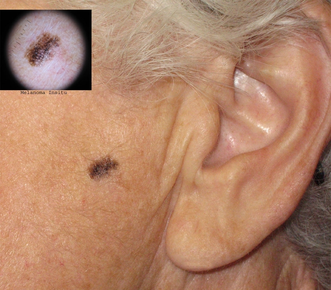 Картинки рак кожи на лице