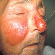 Рожа на лице симптомы