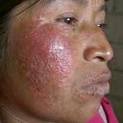 Заболевание рожа на лице