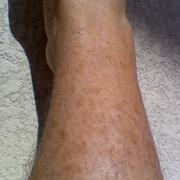Веснушки на ногах