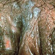 Бовеноидный папулез у женщин