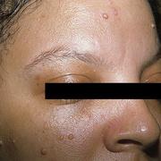 Контагиозный моллюск у женщин на лице