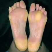 Гиперкератоз кожи ног
