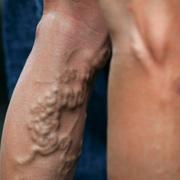 Варикоз глубоких вен нижних конечностей симптомы