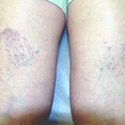 Варикоз при беременности на ногах