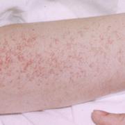 Сыпь на ногах при варикозе