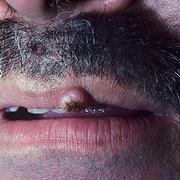Кератоакантома губы