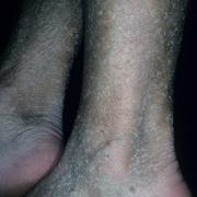Кератоз на ногах