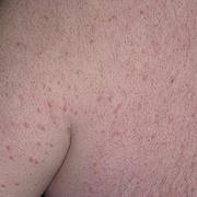 Ксантома кожи
