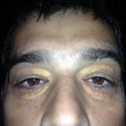 Ксантома на лице