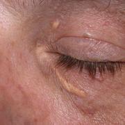 Ксантелазмы на лице