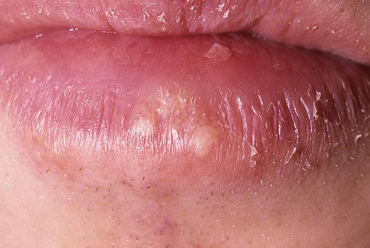 Как выглядит герпес на губах фото - 25 шт. / nezdorov.com