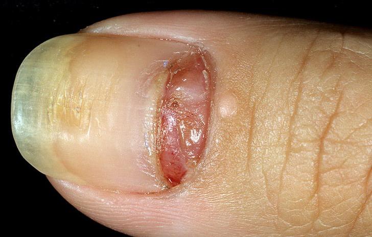 как растут ногти на ногах