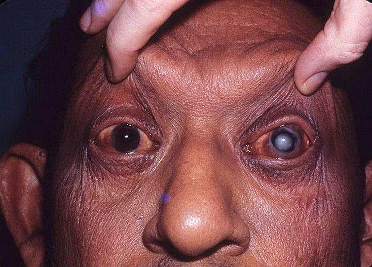 12 самых страшных болезней