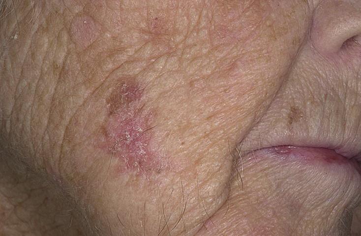 заболевание лица грибковое фото кожи
