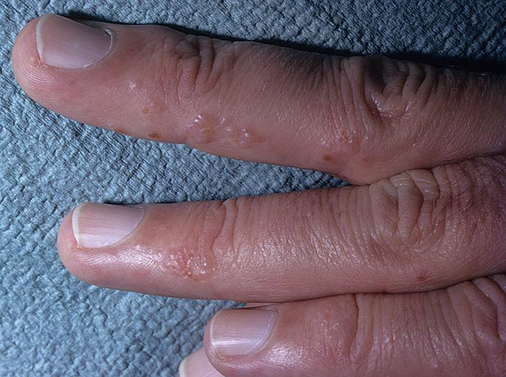 Грибок с пузырьками на пальцах рук в руки
