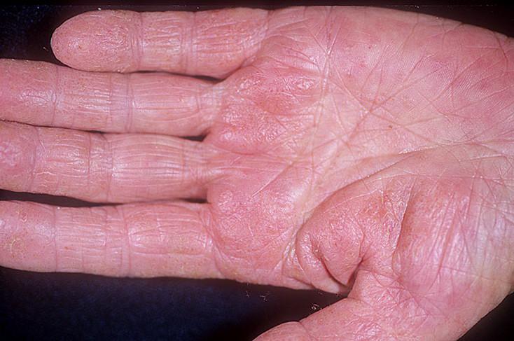 Дисгидротическая экзема кистей рук лечение форум