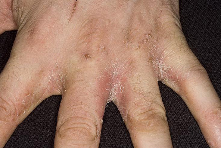 Псориаз Между Пальцами На Руках