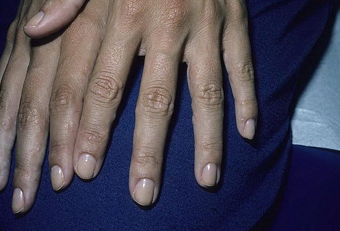 Ногти при атопическом дерматите