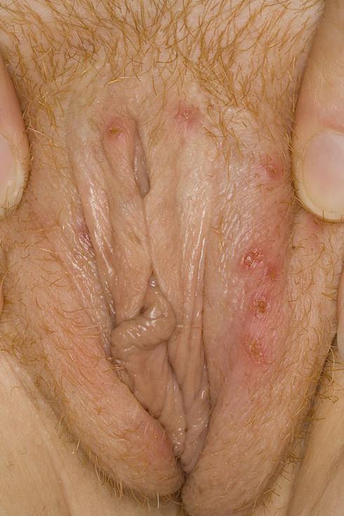 сыпь при венерических заболеваний у женщин