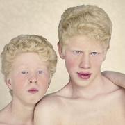 Альбинизм у людей