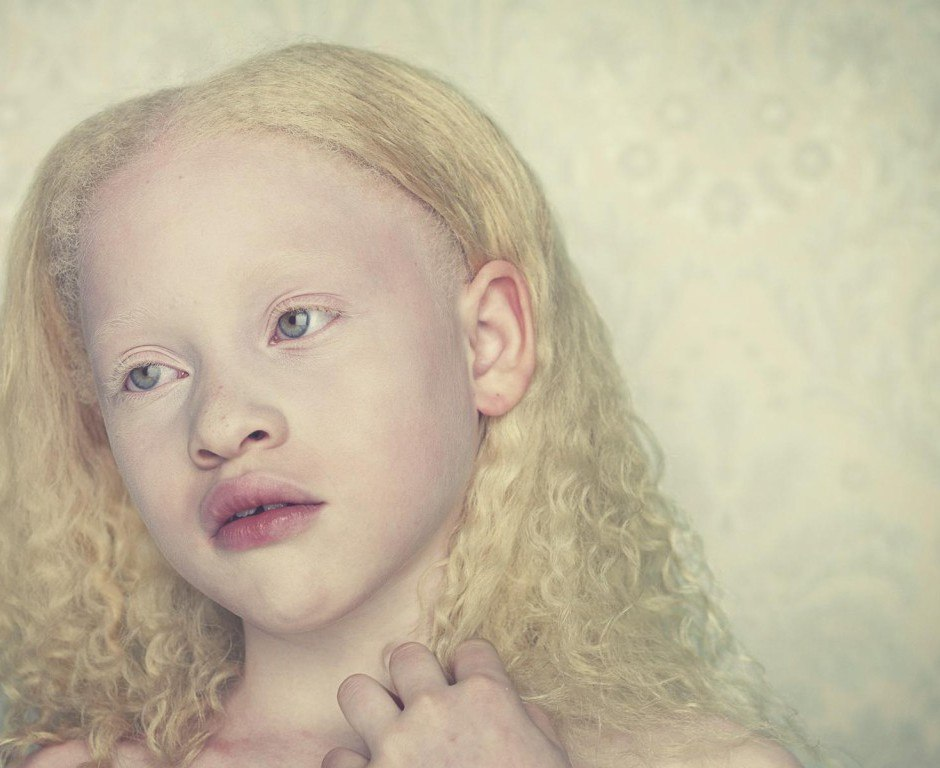 the six different genes involved in albinism