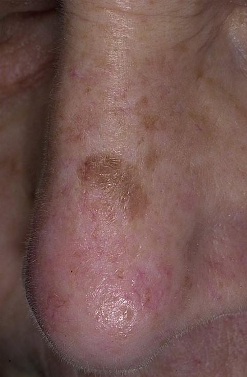 Рак полового члена — злокачественное поражение тканей мужского полового органа, в частности, крайней плоти или головки пениса.