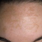 Мелазма на лице