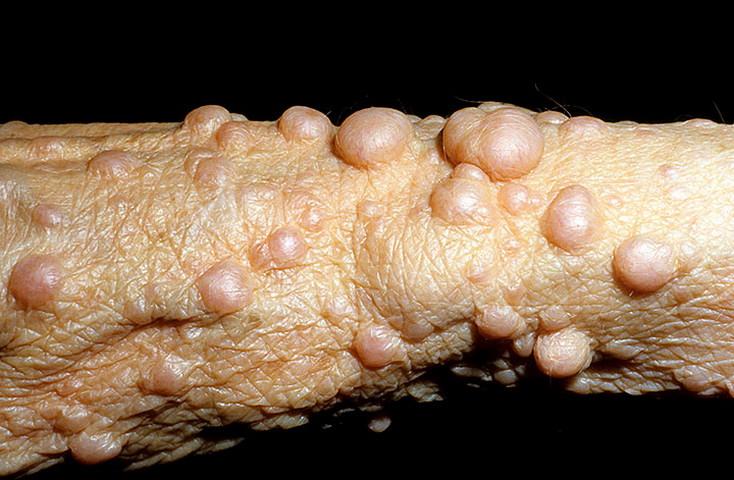 Как выглядит болезнь нейрофиброматоз фото