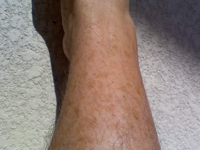 Пигментные пятна на ногах как избавиться в домашних условиях 158