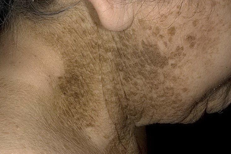 Гиперкератоз кожи головы фото