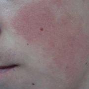 Гиперкератоз на лице