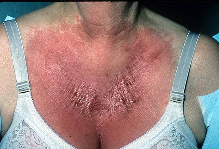 кожа при длительном расчесывании