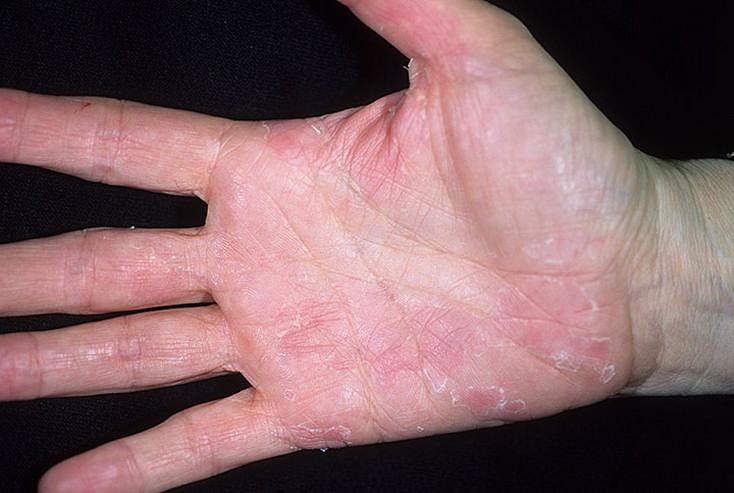 дерматит симптомы и лечение на руках фото