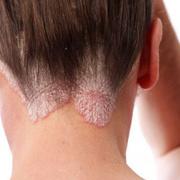 Экзема волосистой части головы