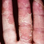 Экзема между пальцами рук