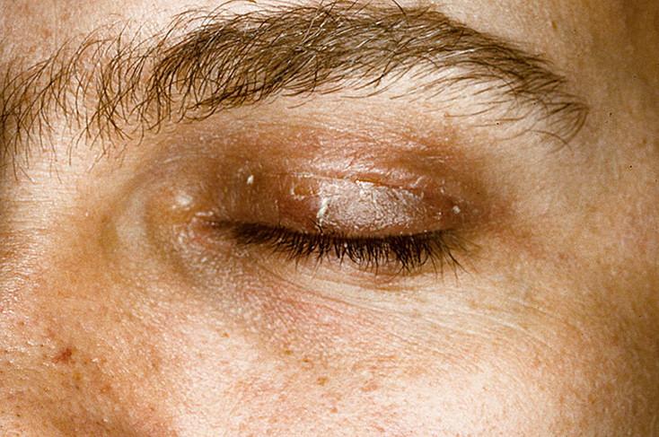 Под глазом кожа как корка