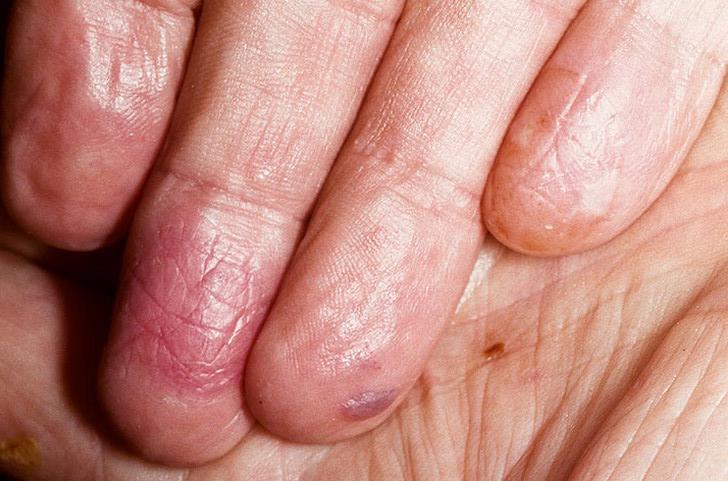 Псориаз на ногах (ступнях пятках) причины симптомы как и чем лечить