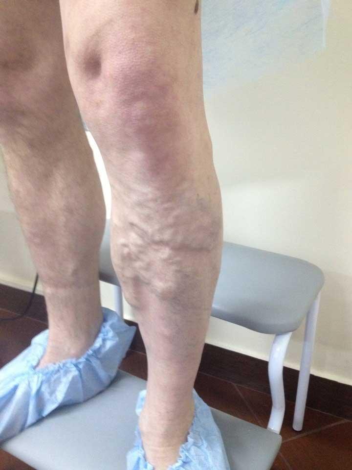 лопаются вены на ногах появляются синяки