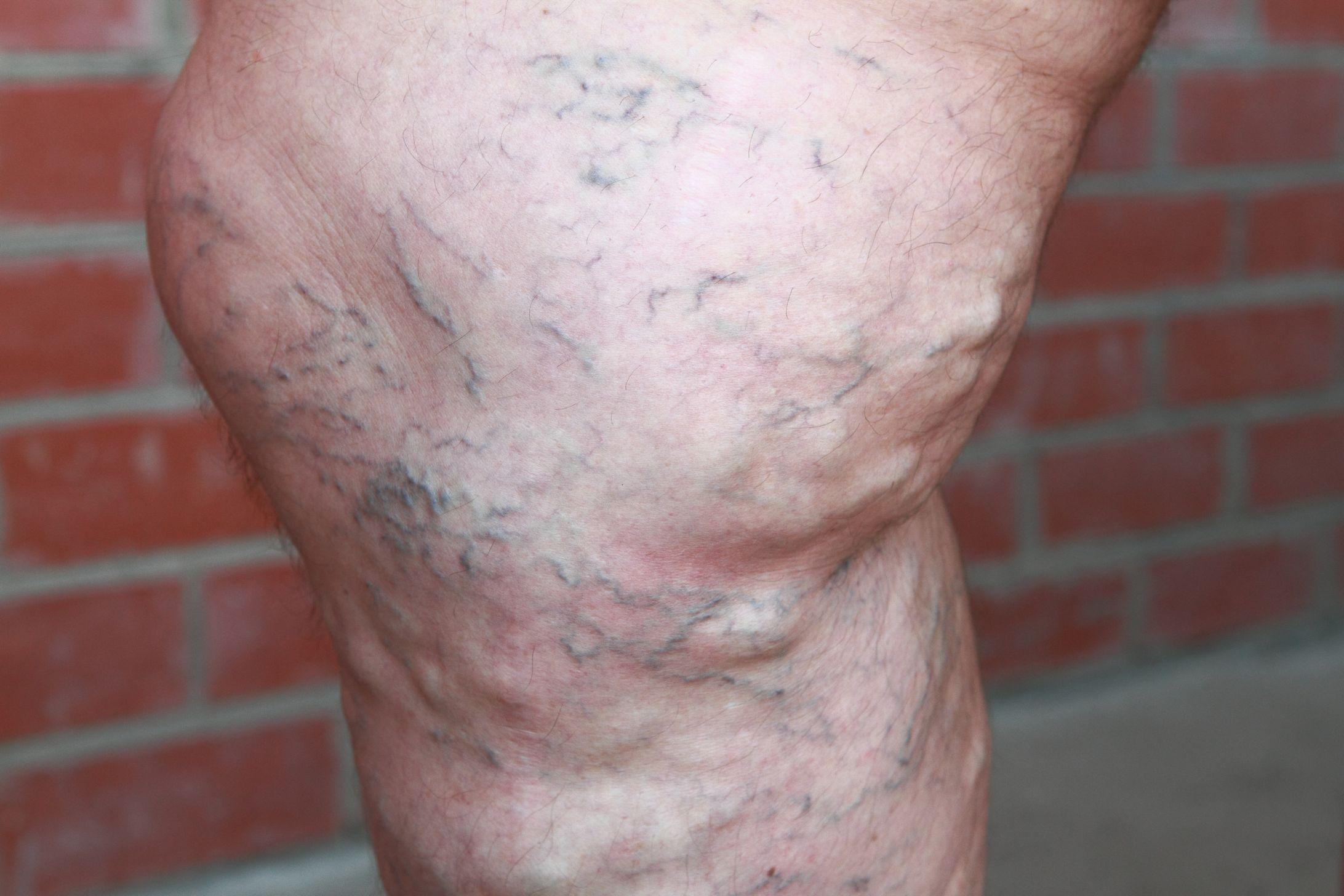 Варикоз глубоких вен нижних конечностей симптомы лечение профилактика