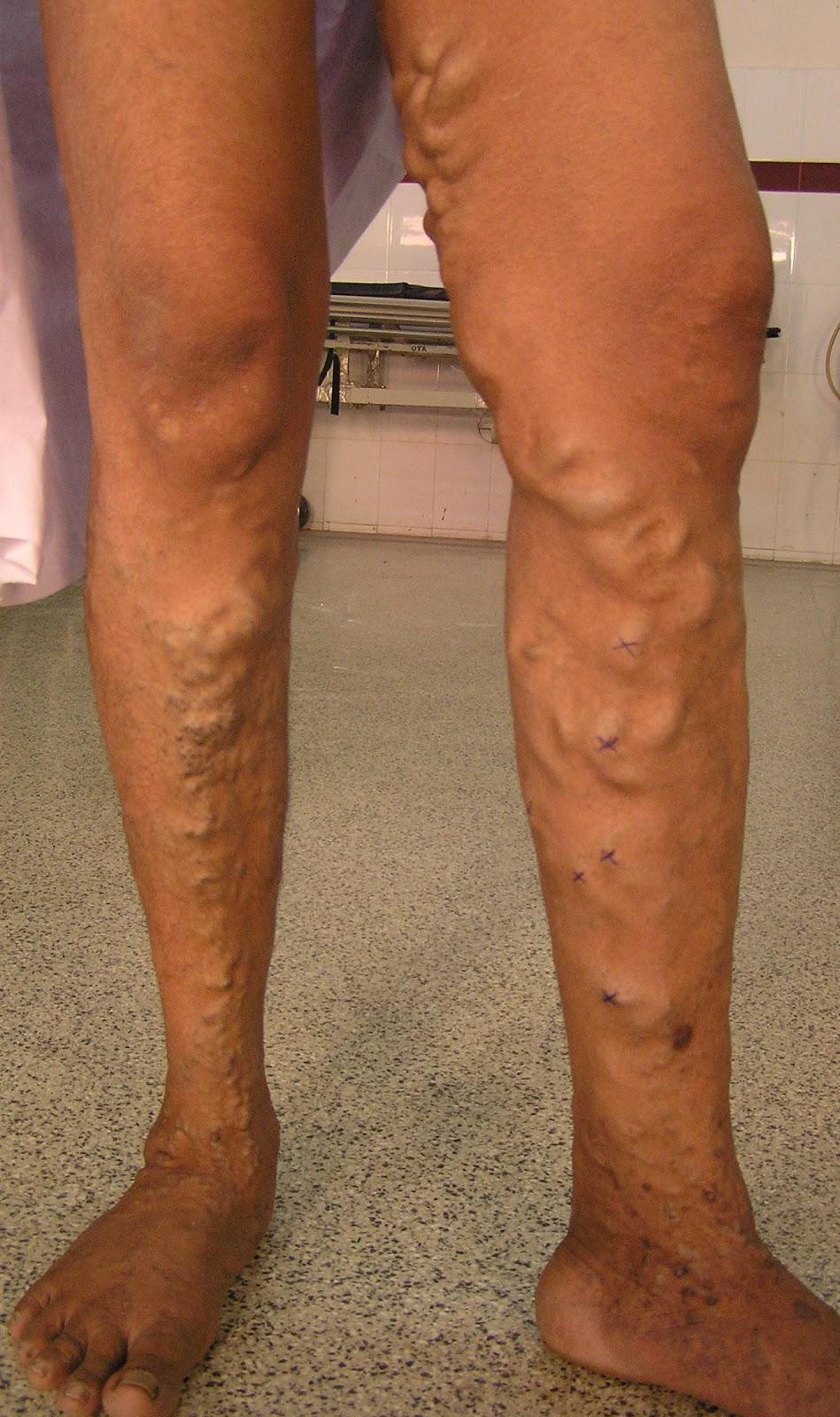 Варикоз нижних конечностей симптомы фото и лечение варикозного расширения вен