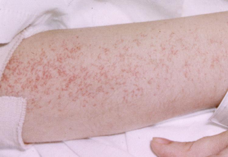 как выглядит сыпь при аллергии фото