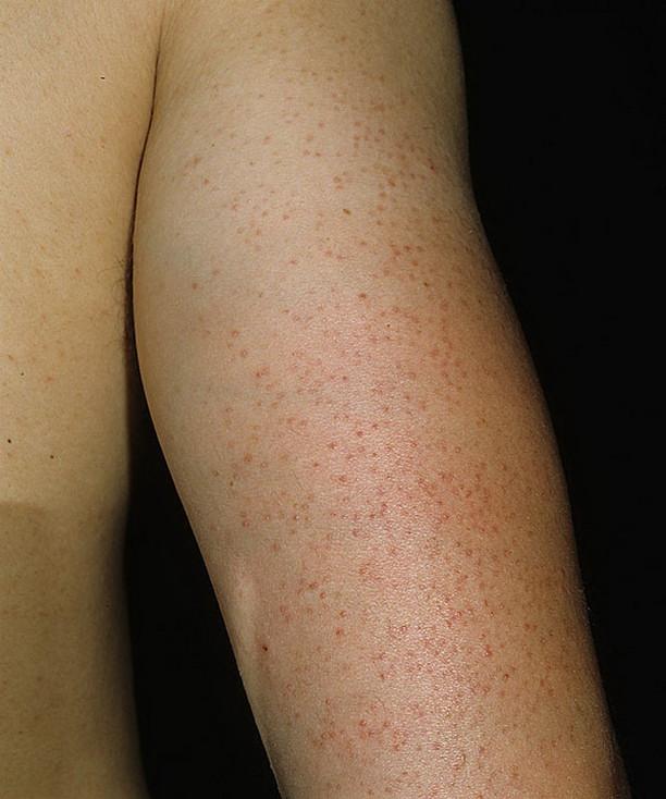 Гиперкератоз кожи причины